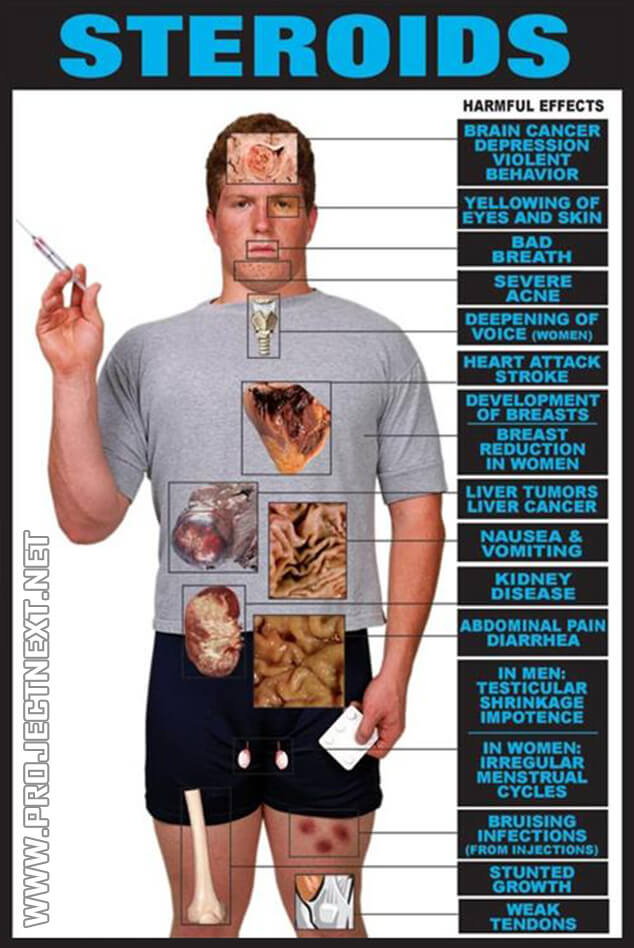 Steroids Harmful Effects - Healthy Fitness Bad Breath Acne Skin
